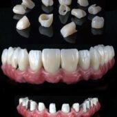 Steva Dental Calic